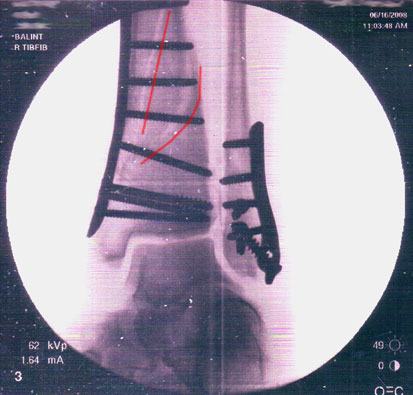 x-ray of broken bone with plates and screws